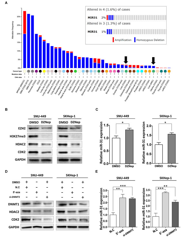 Inactivation mechanism of tumor suppressor miR-31 in liver cancer.