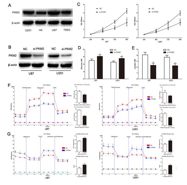 PKM2 promotes glioma cells aerobic glycolysis and proliferation.