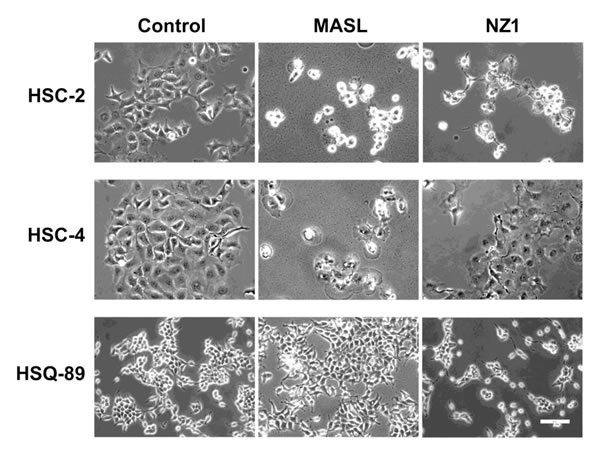 Effects of NZ-1 and MASLon OSCC cell morphology.