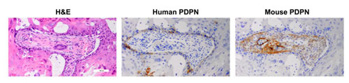 PDPN expression in human OSCC cells and infiltrating mouse fibroblasts in xenograft tumors.