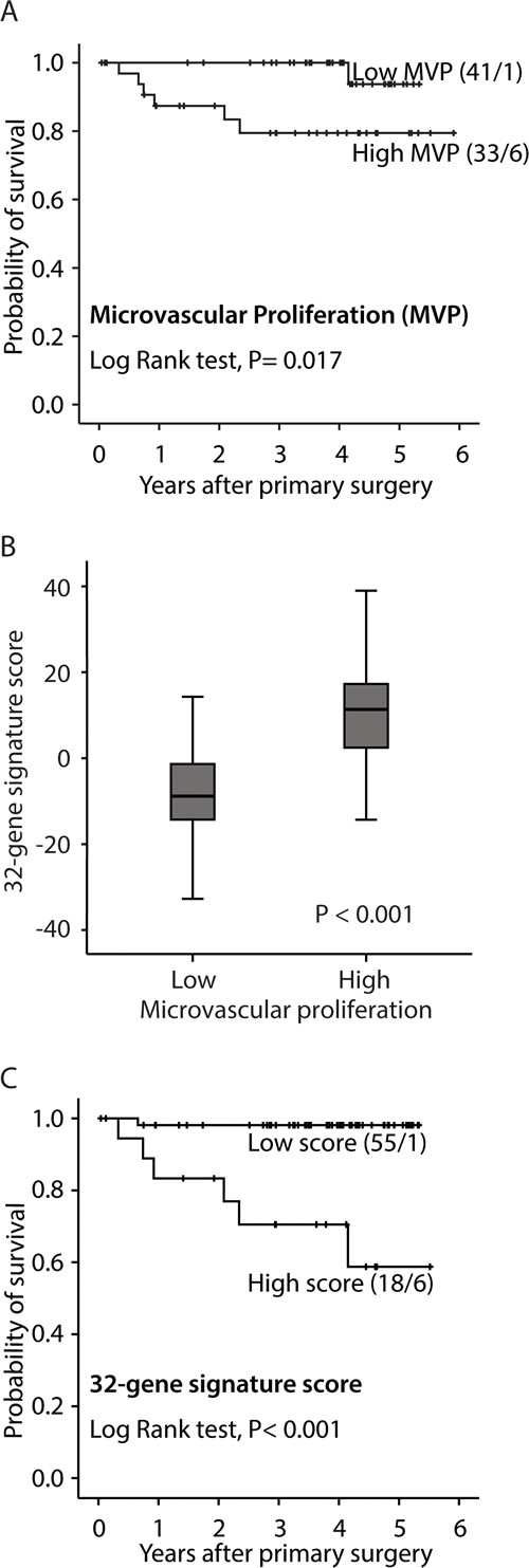 Survival curves by A: high and low microvascular proliferation (MVP), B: high and low vascular proliferation index (VPI) and C: high and low 32-gene signature score.