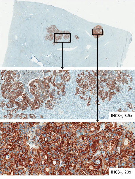 HER-3 immunohistochemical staining of tissue samples from liver metastases.