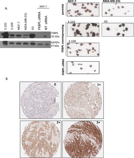 Optimisation of FKBPL antibody for IHC.