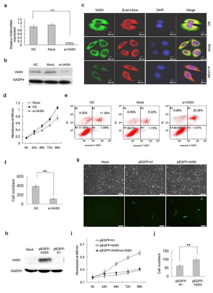 VASN increases hepatoma cell proliferation and migration and inhibited cell apoptosis.