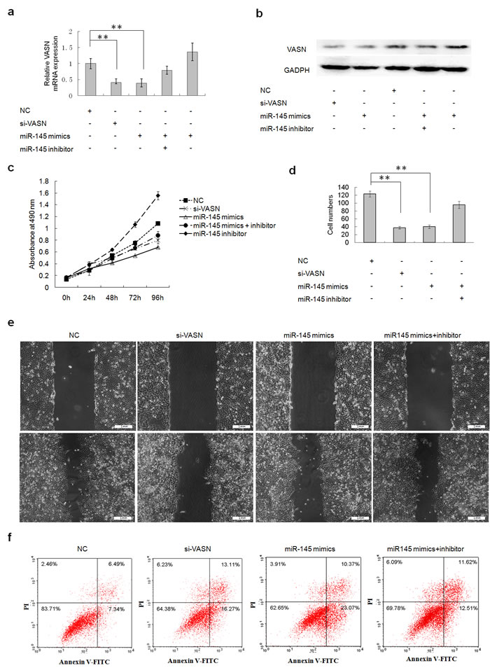 Transient overexpression of miR145 downregulated cell growth and migration and increased apoptosis through downregulation of VASN expression in HepG2 cells.