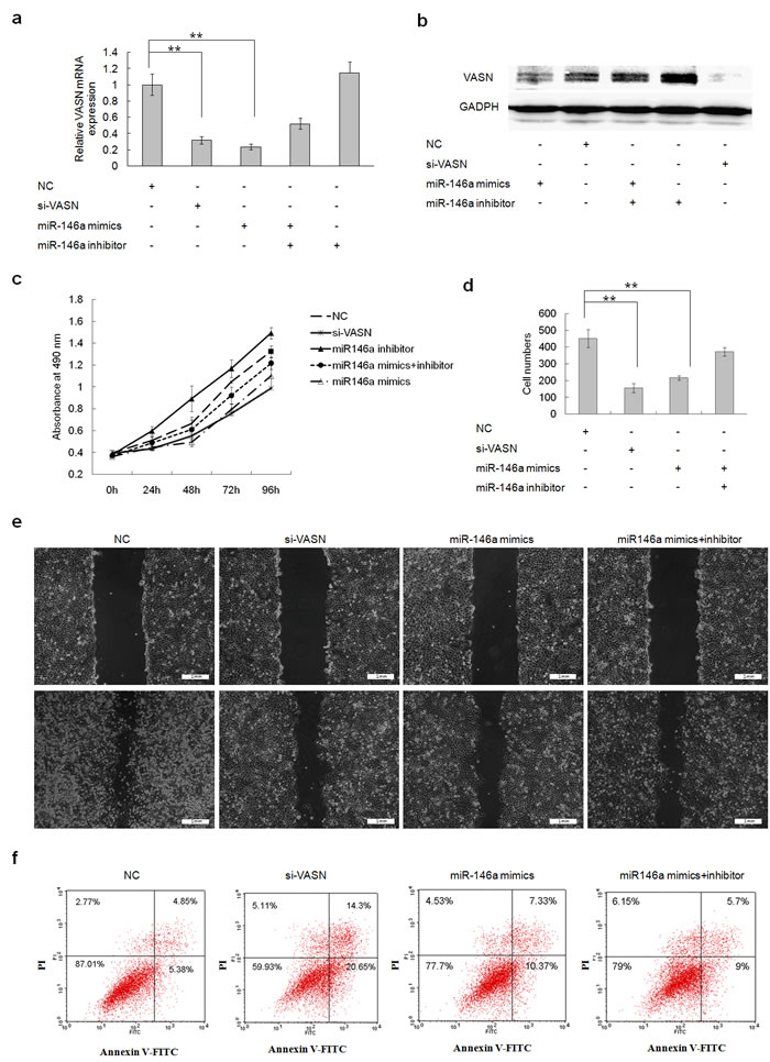 Forced Overexpression of miR146a downregulated cell growth and migration and increased cell apoptosis through downregulation of VASN expression in HepG2 cells.