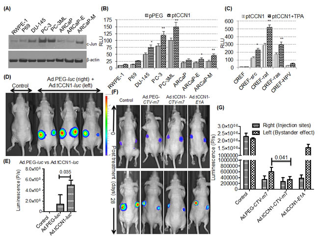 Utilizing the cancer-selective tCCN1-Prom to make conditionally replication-competent bipartite Cancer Terminator Virus (Ad.tCCN1-