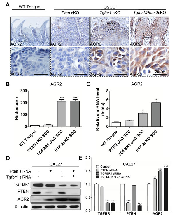 Increased expression of AGR2 is associated with