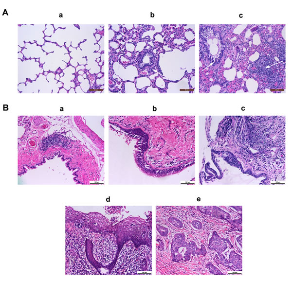 Fig.7: Representative images of airway inflammation and tumorigenesis in rats.