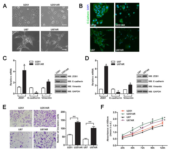 Imatinib-resistant U251AR and U87AR cells exhibit EMT characteristics.