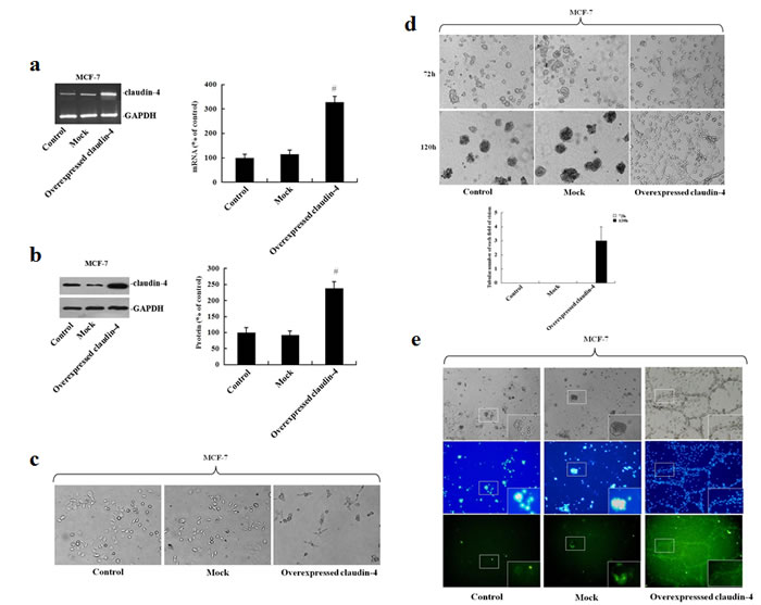 Analysis of vascular channel formation following stable transfection of MCF-7 cells with pEGFP-N1-CLDN4.