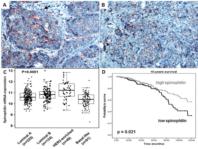 Spinophilin expression in breast cancer tissue and different molecular subtypes.