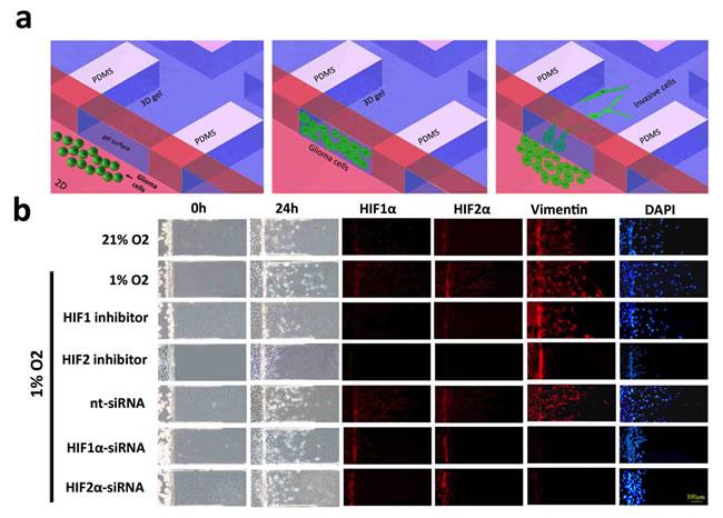 Microfluidic chip migration assay of U87 glioblastoma cells.