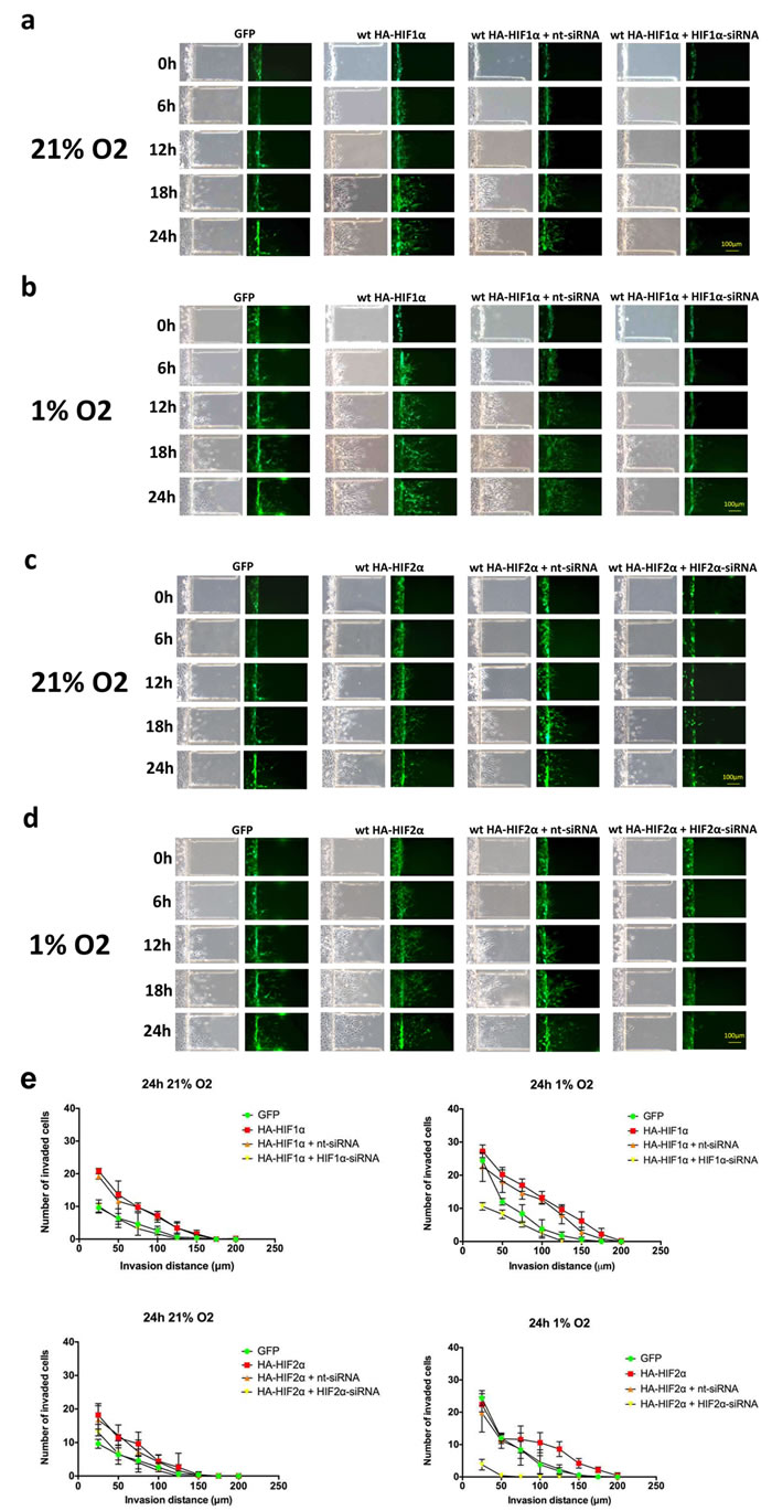 Time-course microfluidic chip migration assay of U87 glioma cells overexpressing HIF1α and HIF2α.