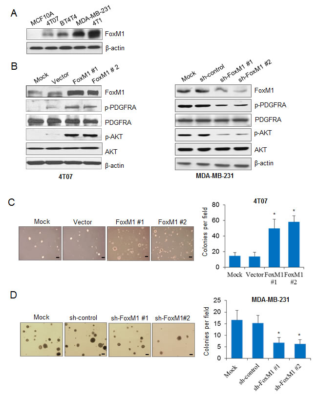 FoxM1 activates the PDGF/AKT signaling pathway and promotes breast cancer cell growth.