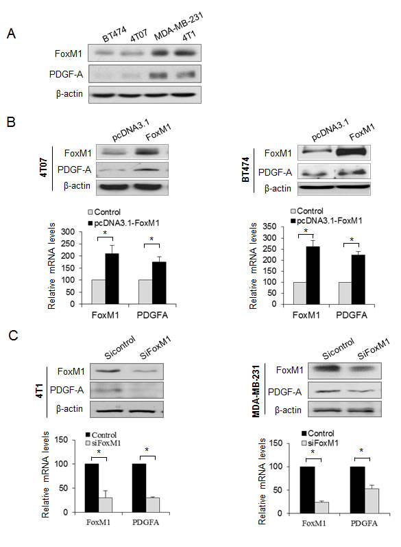 FoxM1 promotes PDGF-A expression in breast cancer cells.