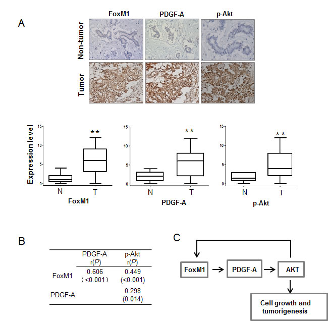 FoxM1, PDGF-A, and phospho-AKT (p-AKT) are positively correlated in human breast cancer samples.