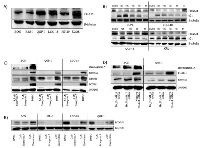 Western blot analysis of FOXM1 and potential target expression in GEP-NEN cell lines .