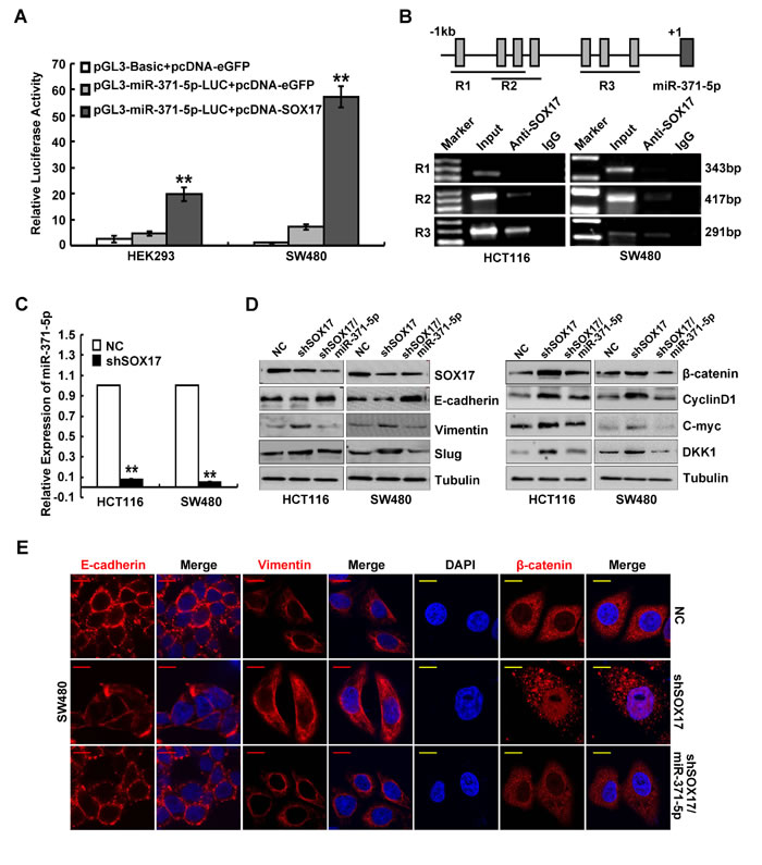 SOX17 transcriptionally regulates miR-371-5p in CRC cells and is sufficient to suppress EMT by regulating miR-371-5p.