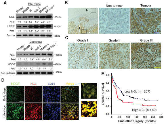 Expression of NCL in human HCC tissues and its association with tumour grade and the survival outcome.
