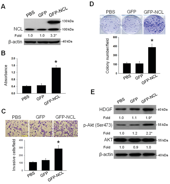 Influence of NCL overexpression on the oncogenic behaviors and HDGF/Akt signaling in hepatoma cells.