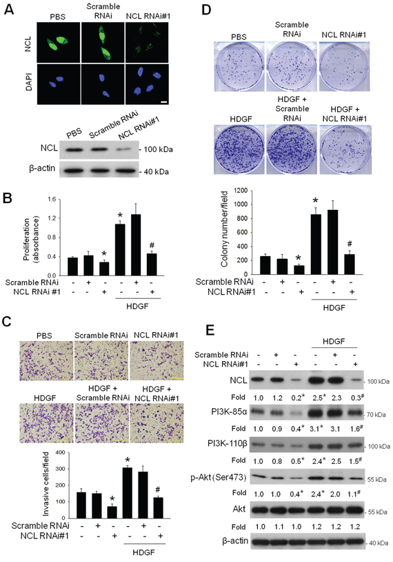 Effect of NCL knockdown on the basal and HDGF-stimulated oncogenic behaviours and PI3K/Akt signaling of hepatoma cells.