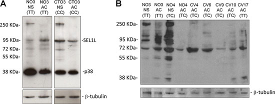 Western blotting analysis for SEL1L in GBM cell lines.