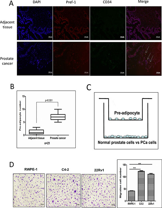 Prostate cancer recruits more pre-adipocytes than normal prostate.