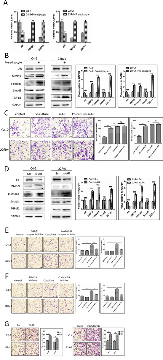 Recruited pre-adipocytes enhanced PCa cell invasion via alteration of AR/TGF-β1/Smad/MMP9 signaling.