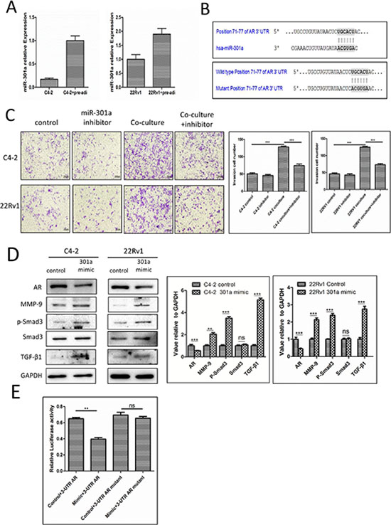 Mechanisms why infiltrating pre-adipocytes could suppress PCa AR expression to promote PCa cell invasion.