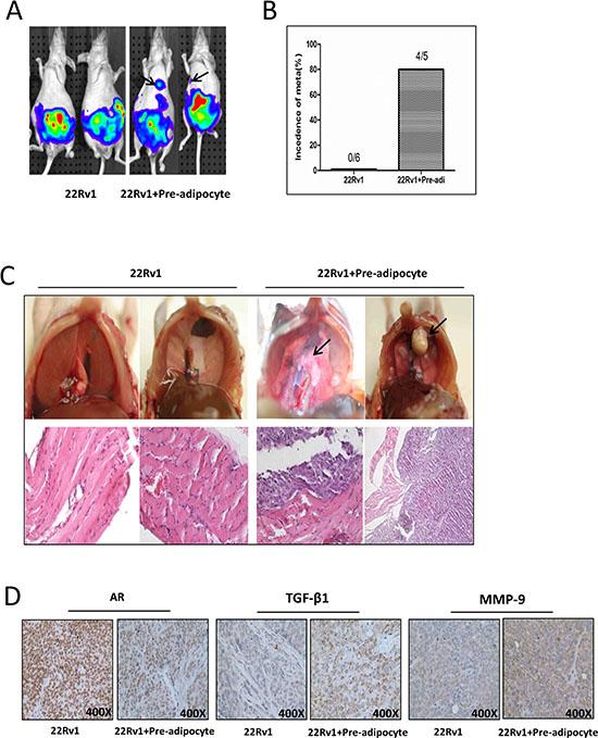 Pre-adipocytes promote PCa invasion using in vivo orthotopic PCa model.