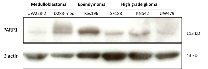 Immunoblot of baseline PARP1 (113 kD) and beta actin (42 kD) expression in pediatric brain tumor cell lines.