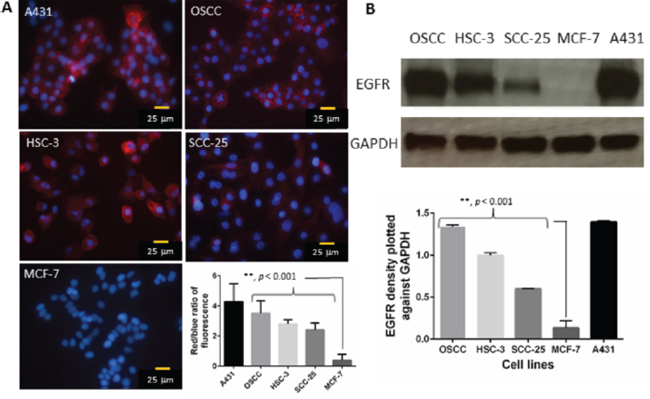 A. Representative immunofluorescence images show the expression of EGFR in A431 (positive control), OSCC, HSC-3, SCC-25 and MCF-7 cells (negative control).