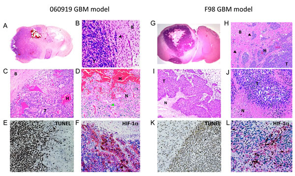 Histological characterization of the intracranial human xenograft 060919 and syngeneic rat F98 GBM models.