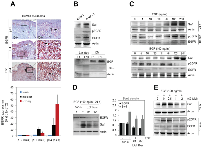 Swiprosin-1 expression is regulated by EGF signaling in melanoma.
