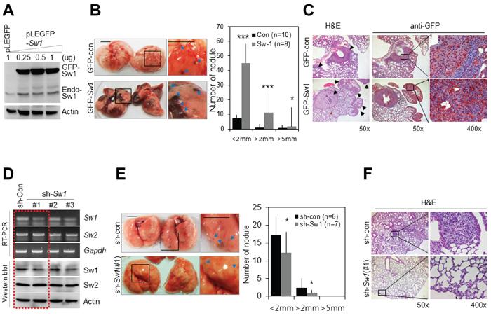 Swiprosin-1 regulates metastasis of B16F10 melanoma in vivo.