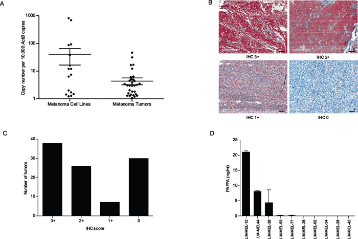 PAPPA expression in melanoma cell lines and tumors.