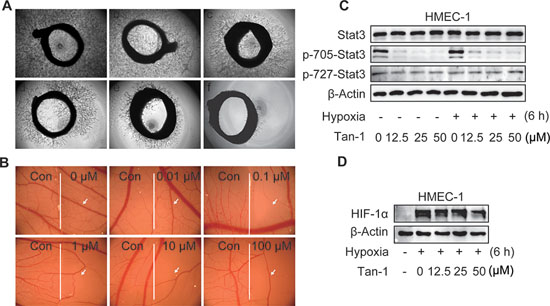 Tanshinone-1 (Tan-1) inhibits angiogenesis and reduces p-705-Stat3 and HIF-1α in HMEC-1 cells.