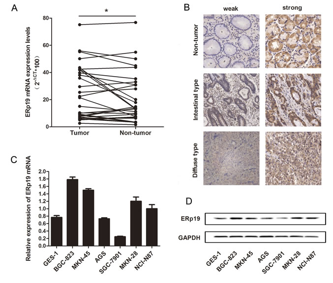 Expression of ERp19 in gastric cancer tissues and cell lines.