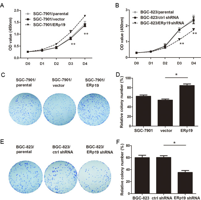 Effects of ERp19 on cell growth in human gastric cancer cells.