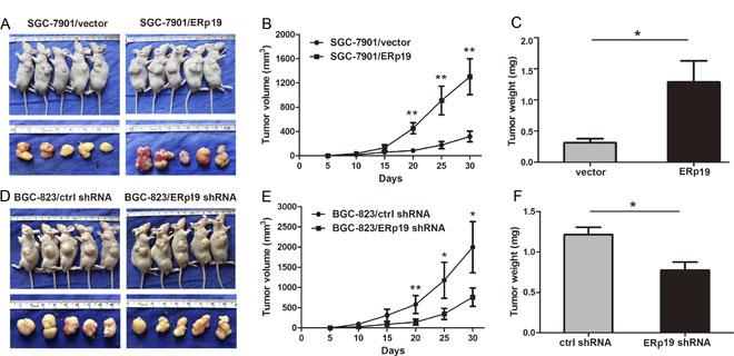 Effects of ERp19 on tumor growth in vivo.