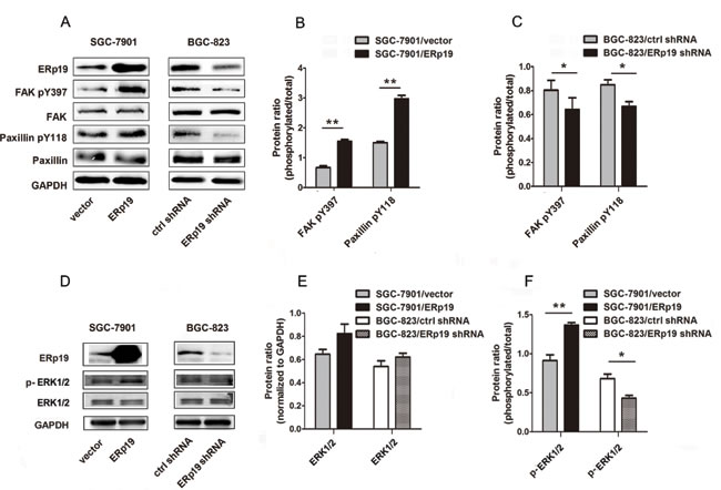 Effects of ERp19 on the phosphorylation levels of FAK/paxillin and ERK1/2 in gastric cancer cells.