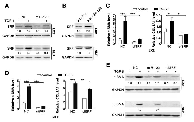Silencing of SRF attenuates the effect of TGF-β in LX2 and NLFs.