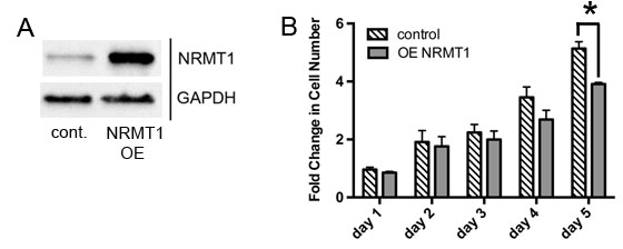 NRMT1 overexpression decreases growth of MDA-MB-231 cells.