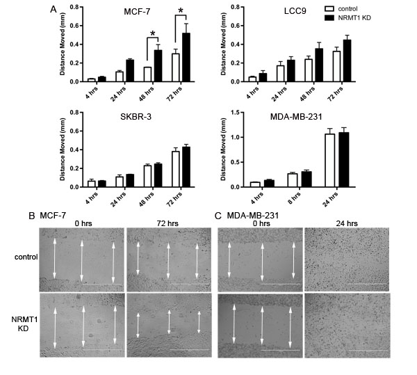 Knockdown of NRMT1 in ER positive breast cancer cell lines also increases wound filling capacity.