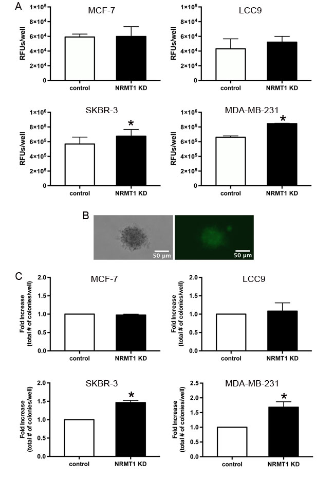 Knockdown of NRMT1 promotes invasive potential and anchorage independent growth of ER negative breast cancer cells.