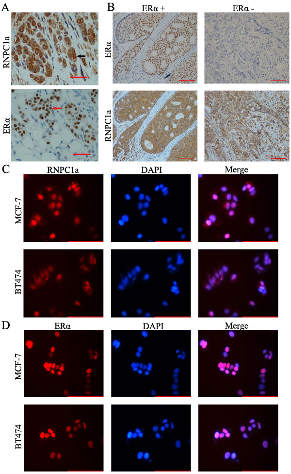 RNPC1 expression correlated with ERα positive human breast cancer.