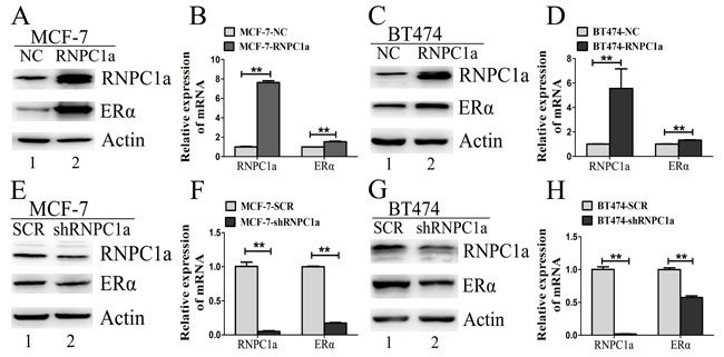 ERα expression was influenced by RNPC1 in ER positive breast cancer cells.