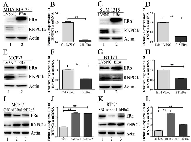 ERα could reversely regulate endogenous RNPC1 expression.