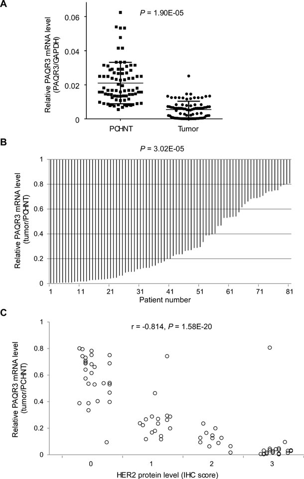 Expression of PAQR3 is reduced in human breast cancer samples and inversely correlated with HER2 expression.